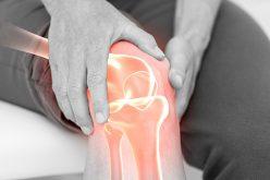 Gonarthrosis Or Osteoarthritis Of The Knee